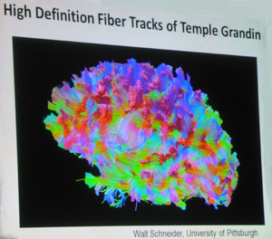 High Definition Brain Scan