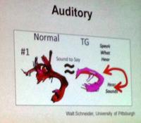 Auditory Nerve Bundles